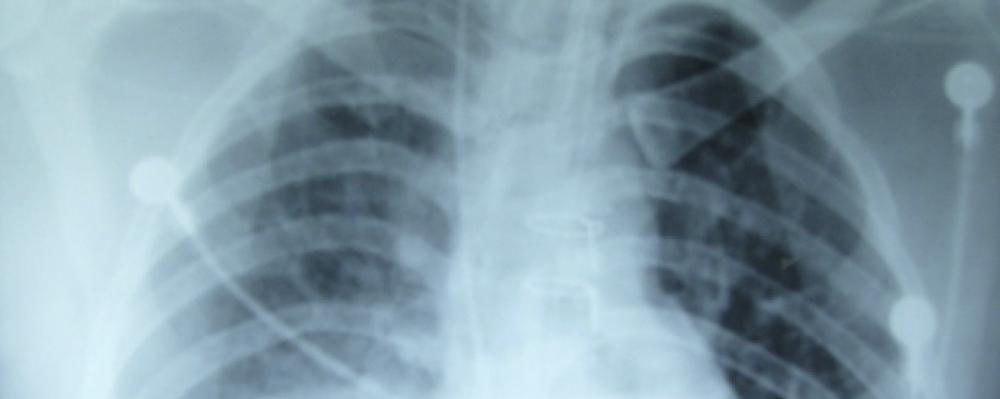 Unusual causes of dyspnea